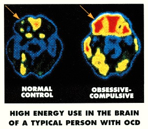 """From Jeffery Schwartz book """"Brain Lock"""""""